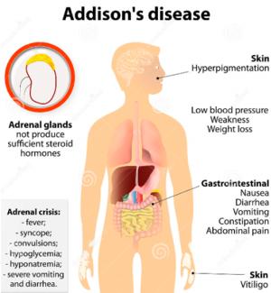group_3_presentation_2_-_addison_s_disease - Wiki