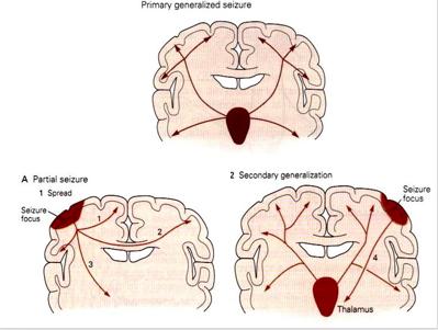 group_2_presentation_2_-_epilepsy - Wiki